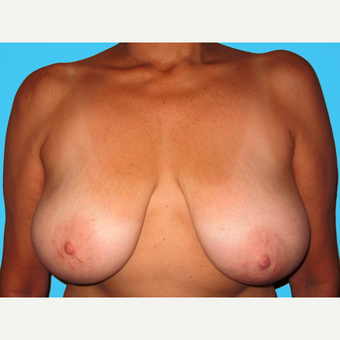 Breast Reduction before 3809983