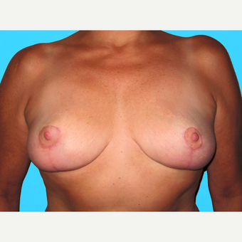 Breast Reduction after 3809983
