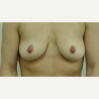 Breast Lift before 3108939