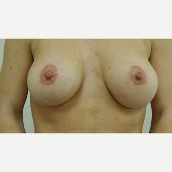 Breast Lift after 3108939