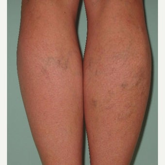 45-54 year old woman treated with Sclerotherapy