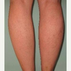 45-54 year old woman treated with Sclerotherapy after 2533056