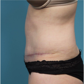 37 year old woman treated with Tummy Tuck after 3149592