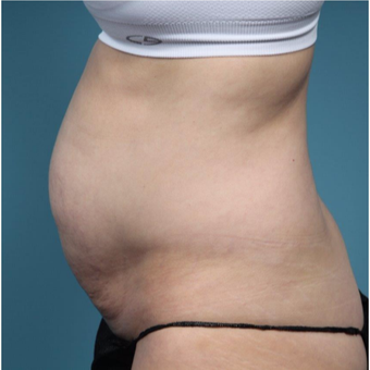 37 year old woman treated with Tummy Tuck before 3149592