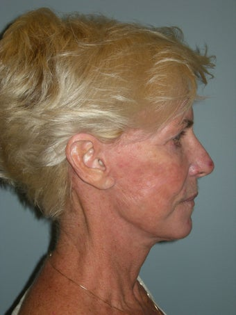 Face and neck lift on a 68 year-old woman.