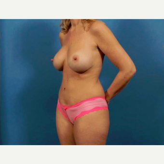 35-44 year old woman treated with Breast Implants after 3786978