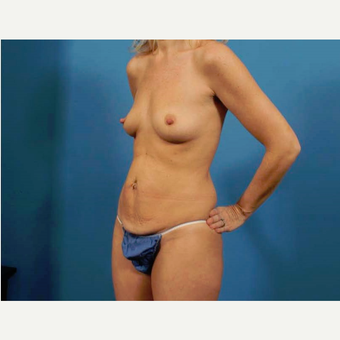 35-44 year old woman treated with Breast Implants before 3786978