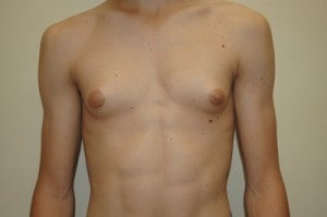 Gynecomastia before 1197592