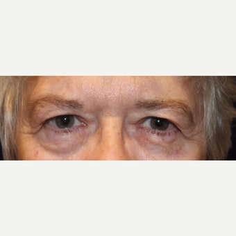 65-74 year old woman treated with Eyelid Surgery before 2833071