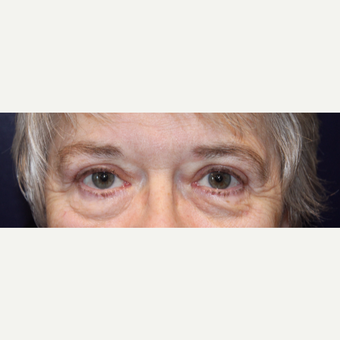 65-74 year old woman treated with Eyelid Surgery after 2833071