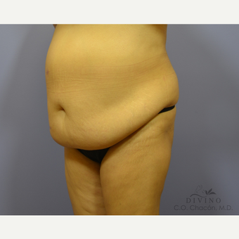55-64 year old woman treated with Tummy Tuck before 3415759