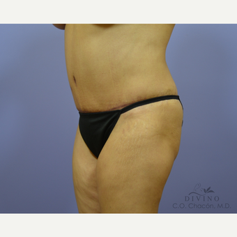 55-64 year old woman treated with Tummy Tuck after 3415759