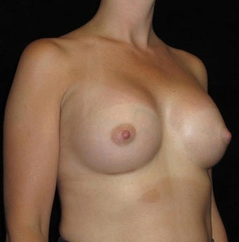 25 year old woman treated with Breast Augmentation 3104736