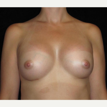 25 year old woman treated with Breast Augmentation after 3104736