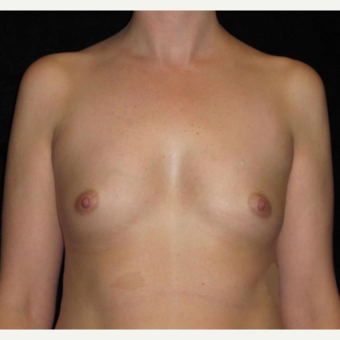 25 year old woman treated with Breast Augmentation before 3104736