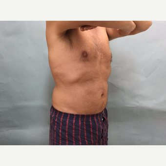 45-54 year old man treated with CoolSculpting after 3246954