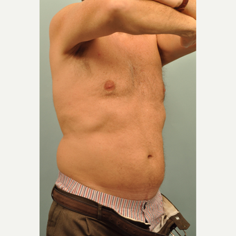 45-54 year old man treated with CoolSculpting before 3246954