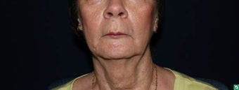 face and neck lift to improve neck and jowls