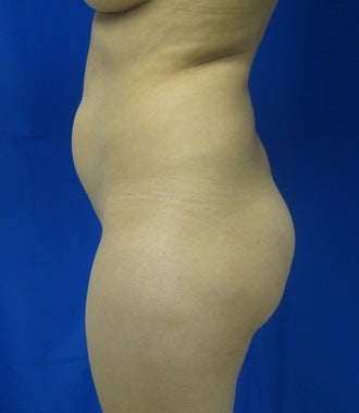 Brazilian Buttlift 943783
