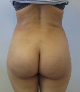 Brazilian Buttlift after 943783