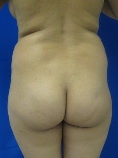 Brazilian Buttlift before 943783