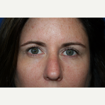 45-54 year old woman treated with Eyelid Surgery after 3621161