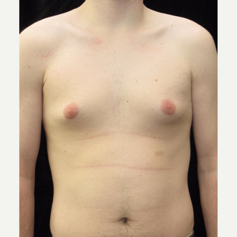 21 year old man treated with Male Breast Reduction for Gynecomastia before 2702754