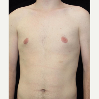21 year old man treated with Male Breast Reduction for Gynecomastia after 2702754