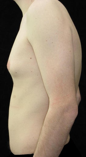 21 year old man treated with Male Breast Reduction for Gynecomastia 2702754