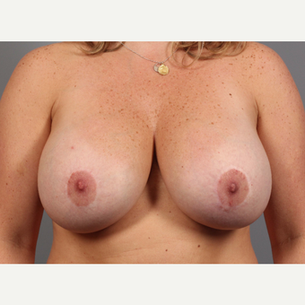 35-44 year old woman treated with Breast Lift with Implants before 3588516