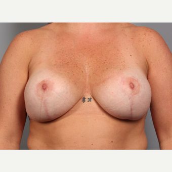 35-44 year old woman treated with Breast Lift with Implants after 3588516