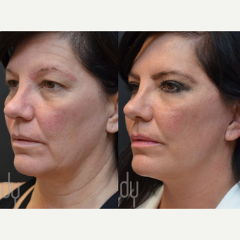 Facelift and Upper Blepharoplasty before 3116149