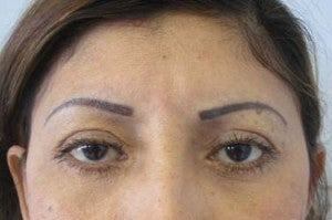 Eyelid Surgery after 3168601