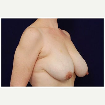 45-54 year old woman treated with Breast Lift before 2526085