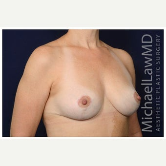 45-54 year old woman treated with Breast Lift after 2526085