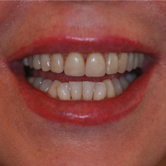 45-54 year old woman treated with Smile Makeover before 3506988