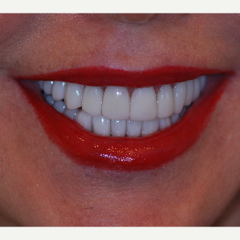 45-54 year old woman treated with Smile Makeover after 3506988