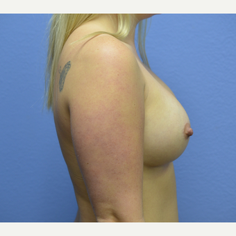 18-24 year old woman treated with Breast Augmentation after 3076777