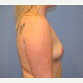 18-24 year old woman treated with Breast Augmentation before 3076777