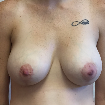 25-34 year old woman treated with Breast Lift with Implants after 3604521