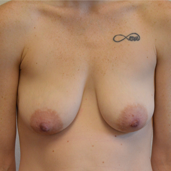 25-34 year old woman treated with Breast Lift with Implants before 3604521