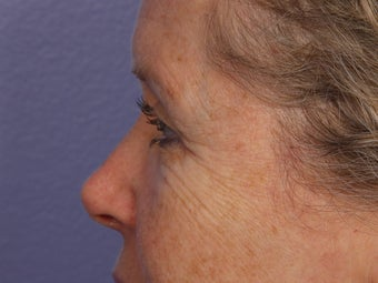 Eyelid Surgery after 280839