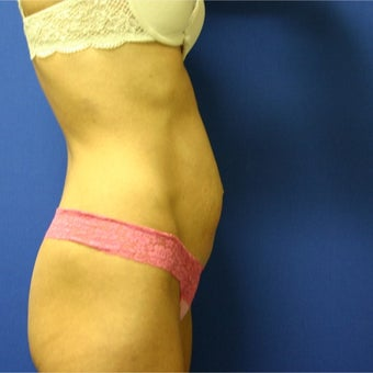 35-44 year old woman treated with Tummy Tuck 1919049
