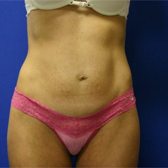 35-44 year old woman treated with Tummy Tuck before 1919049