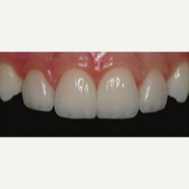 35-44 year old woman treated with Porcelain Veneers after 3428297