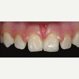 35-44 year old woman treated with Porcelain Veneers before 3428297