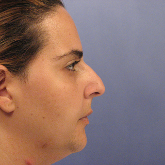 18-24 year old woman treated with Rhinoplasty before 3570885