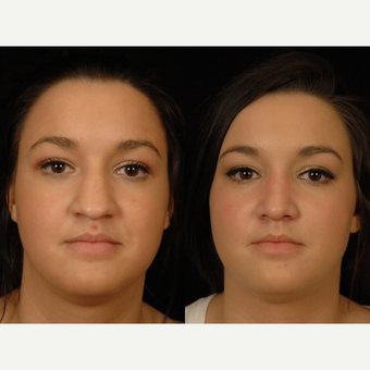 18-24 year old woman treated with Rhinoplasty before 3659006