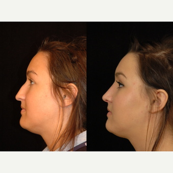 18-24 year old woman treated with Rhinoplasty after 3659006