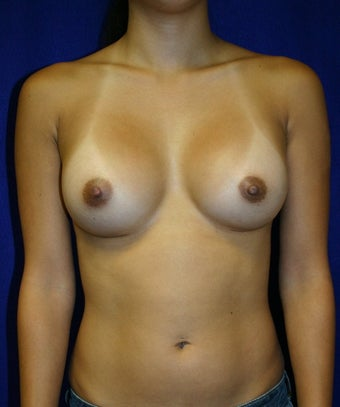 Breast Augmentation  after 347051